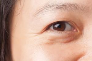 Cách chống nhăn vùng mắt