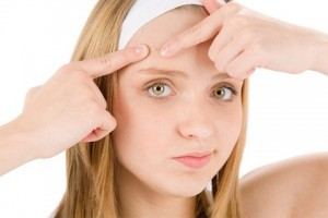 9 cách trị mụn đầu đen bằng nguyên liệu tự nhiên