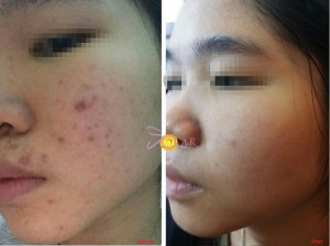 Bí quyết trị nám da mặt tại nhà hiệu quả cho các chị em