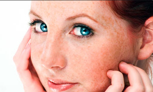 Cách điều trị nám da mặt hiệu quả nhất  từ thiên nhiên