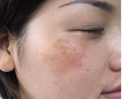 Những điều nên và không nên khi chăm sóc da bị nám
