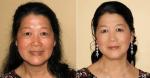 Hướng dẫn sử dụng kem trị nám sakura hiệu quả nhất chuẩn Y Khoa